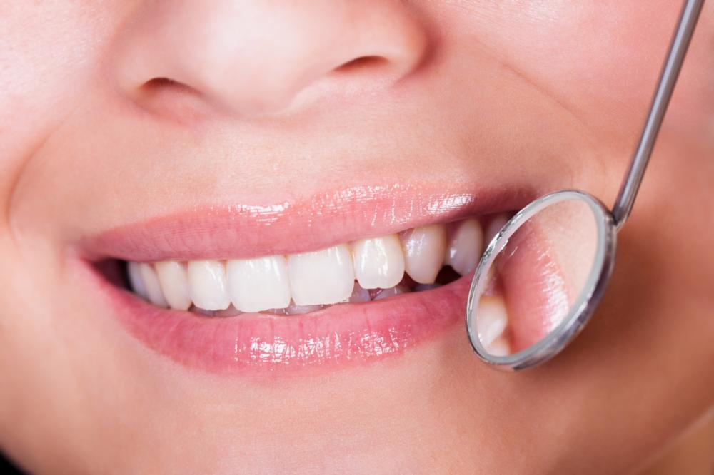 a dental mirror inspects a smile | dental crowns darwin nt