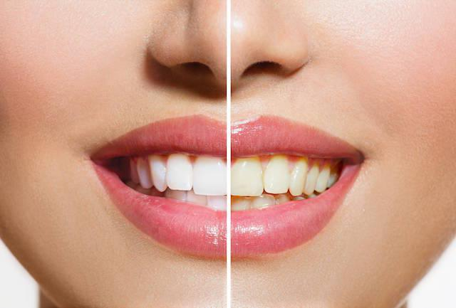 a before and after image of teeth whitening | teeth whitening northern suburbs nt