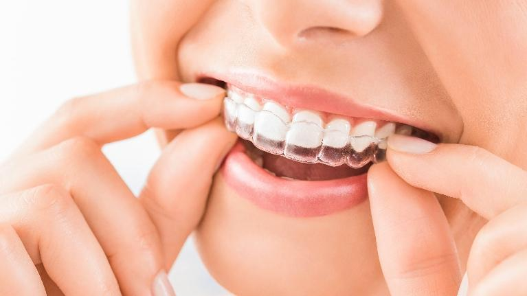 a woman puts in her invisalign clear aligner | invisalign casuarina nt