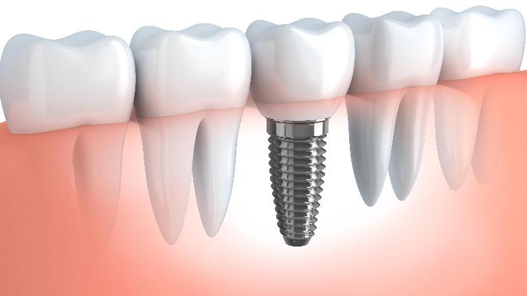 Dental Implants Darwin NT