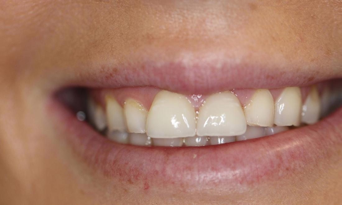 a smile with a veneer over a chipped and discoloured front tooth, restoring its look | casuarina nt veneers