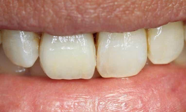 a close up of a person's smile after a veneer