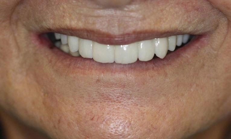 a person smiles with their new set of upper teeth, from an implant bridge