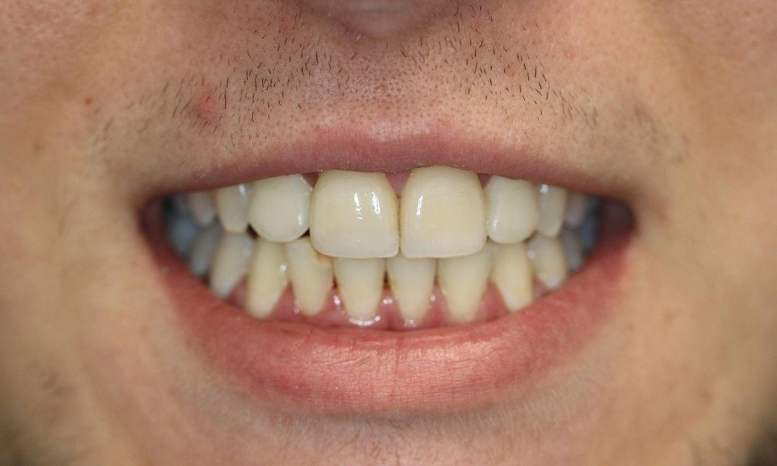 a smile after a dental veneer treatment | dental veneers in casuarina nt