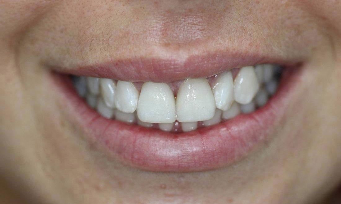 a smile with a veneer placed on a front tooth | casuarina nt dental veneers