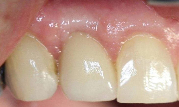 a new dental implant sitting between new teeth
