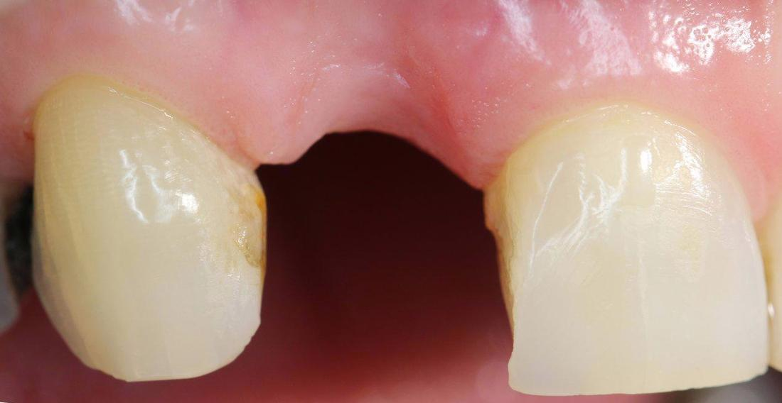 a close up image of a missing tooth framed by two in-tact teeth | dental implants northern suburbs