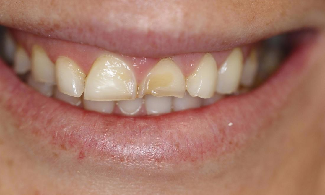 a smile with a chipped and discoloured upper front tooth | casuarina nt dental veneers