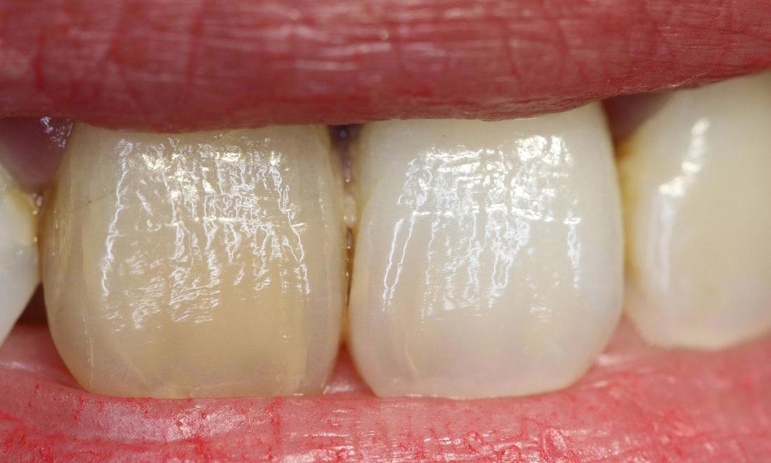 a persons smile, with one discoloured front, upper tooth | dental veneers casuarina nt