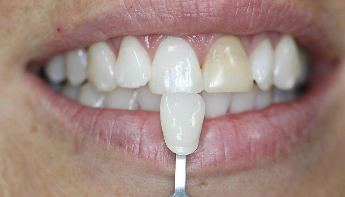 a smile with a discoloured upper front tooth | veneers in casuarina nt