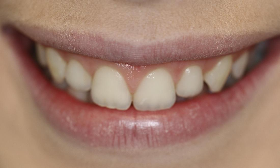 a persons smile with slightly faded front, upper teeth | veneers casuarina nt